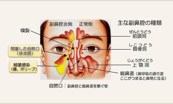 副鼻腔炎 細田耳鼻科